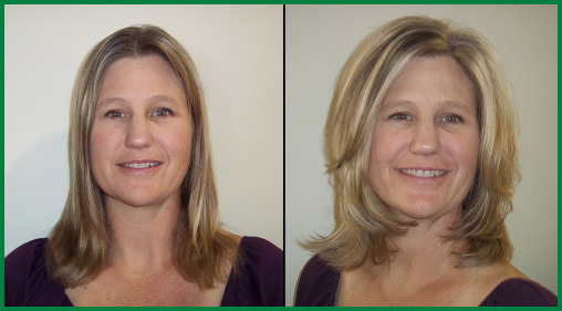 Scottsdale Hair Sytlist Before and After photo 1